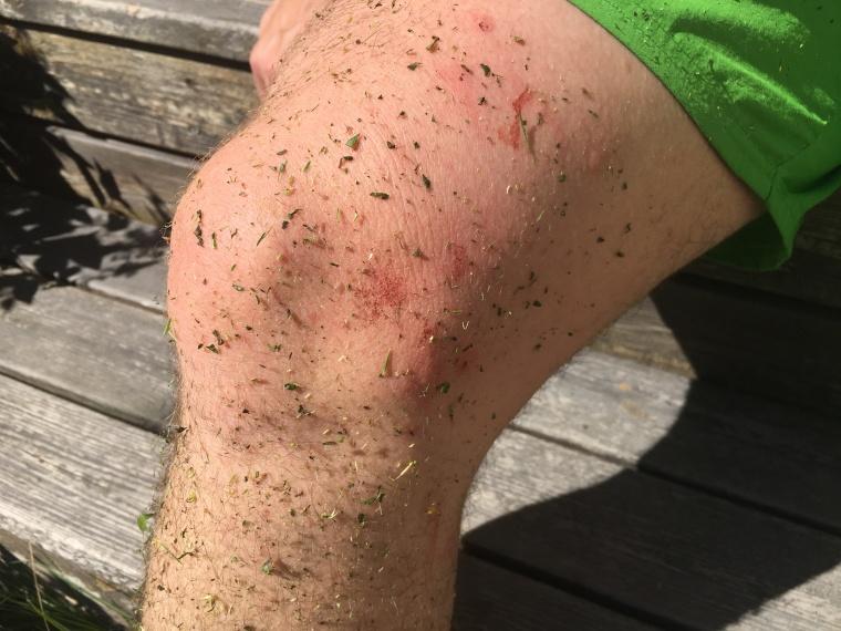 Aje! En massa gräs och brännässlor. Plus flera elaka hästflugor som bitit sambon på benen.